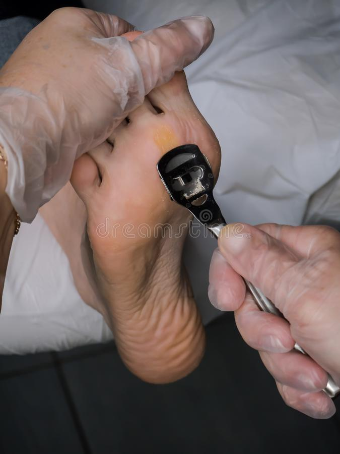 Slut upp av valkar Smärtsam havre på fötter Behandling av havre på foten arkivfoton