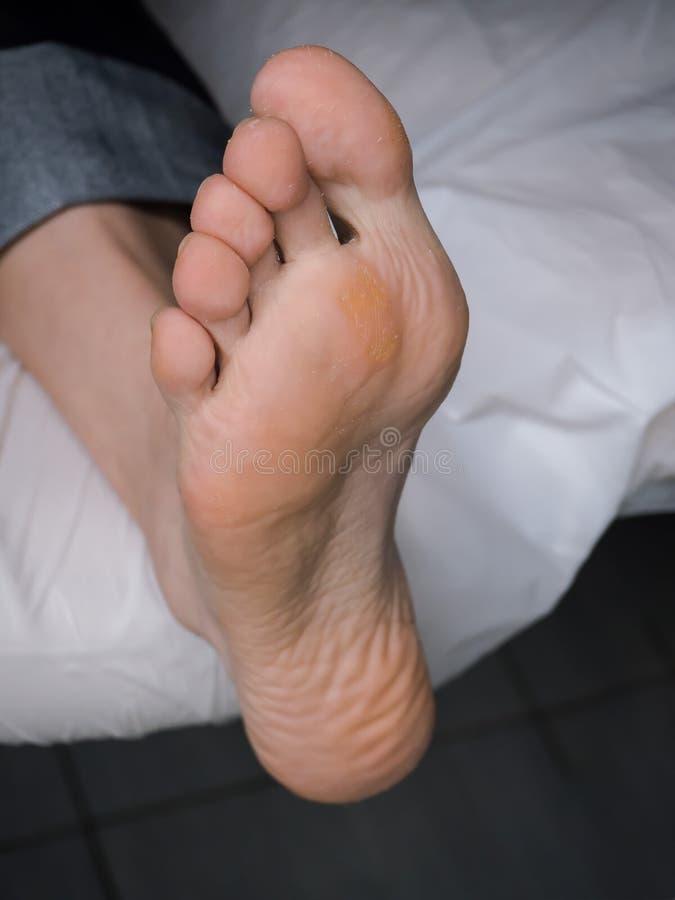 Slut upp av valkar Smärtsam havre på fötter Behandling av havre på foten arkivbilder