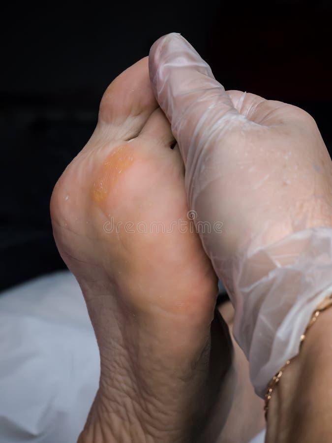 Slut upp av valkar Smärtsam havre på fötter Behandling av havre på foten fotografering för bildbyråer
