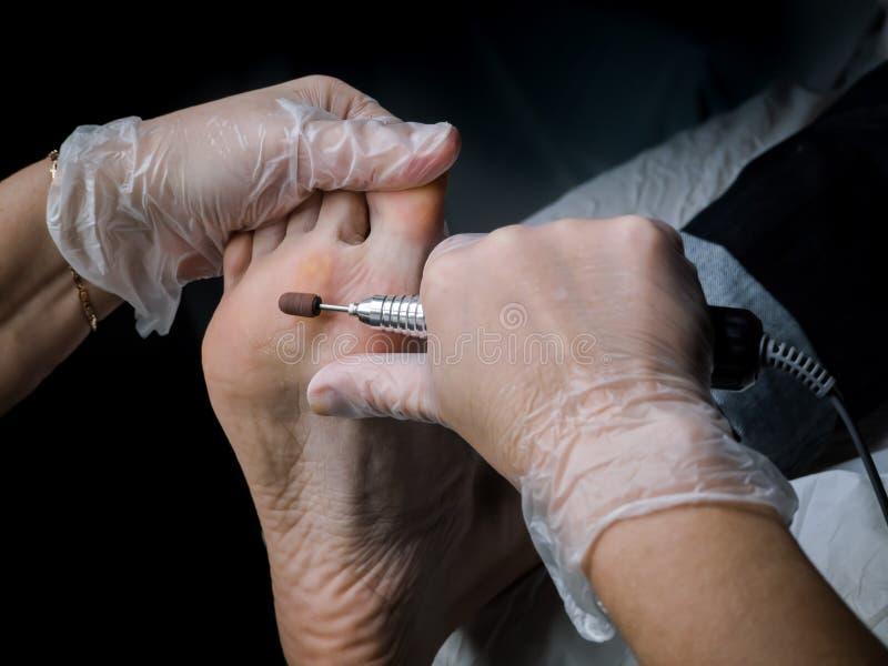 Slut upp av valkar Smärtsam havre på fötter Behandling av havre på foten royaltyfri bild