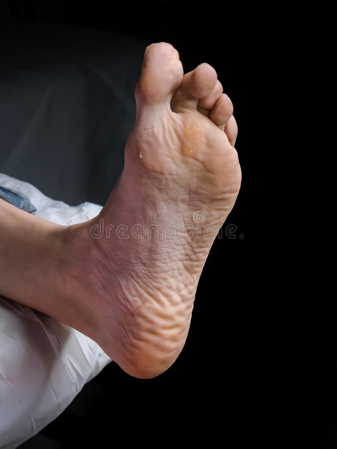 Slut upp av valkar Smärtsam havre på fötter Behandling av havre på foten arkivbild