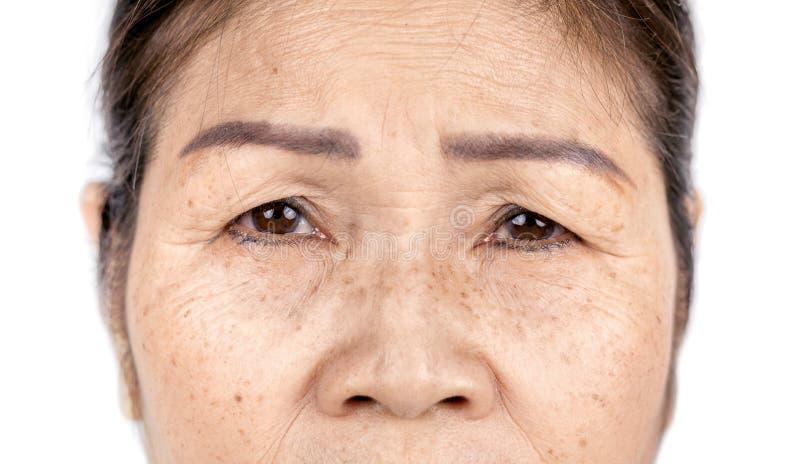 Slut upp hudskrynkla och fräknar av den gamla asiatiska kvinnaframsidan arkivbild