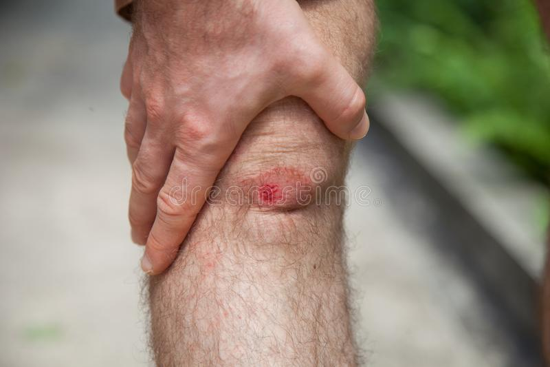 Slut upp på ett blödning skrapat mänskligt knä efter körd olycka Sår från avgasrörmotorcykeln royaltyfria bilder