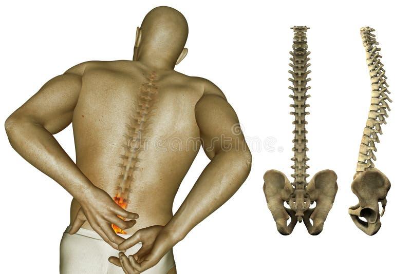 Smärta i baksidan och rygg royaltyfri illustrationer