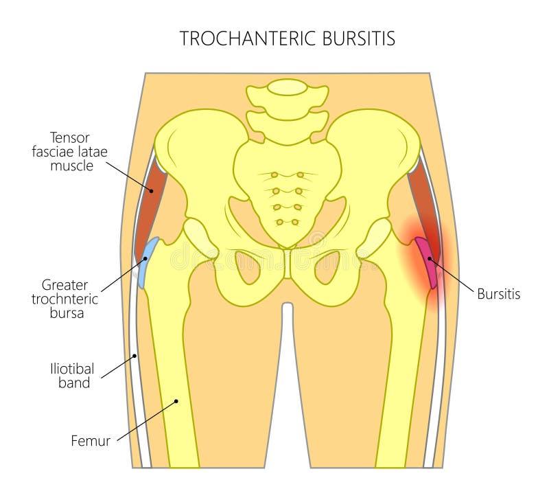 Smärta i den joint_trochanteric bursitisen för höften stock illustrationer