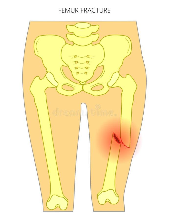 Smärta i höftjoint_femurbrottet vektor illustrationer