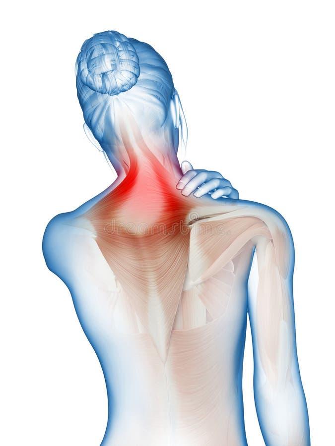 Smärta i halsmusklerna stock illustrationer