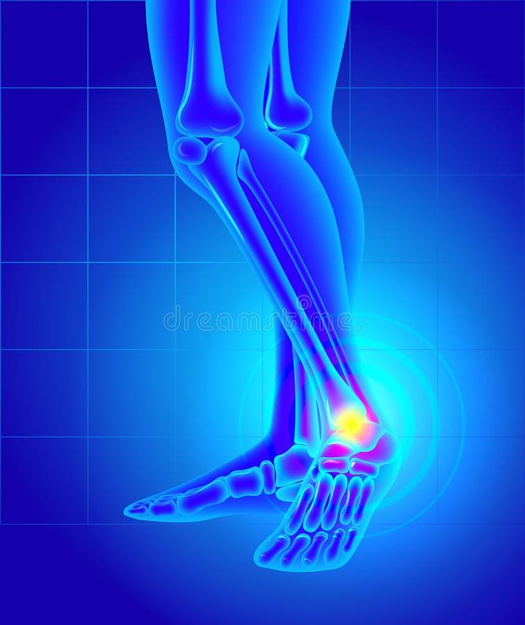 Smärta och bulnad på insidan av ankeln Smärta av en fot  vektor illustrationer