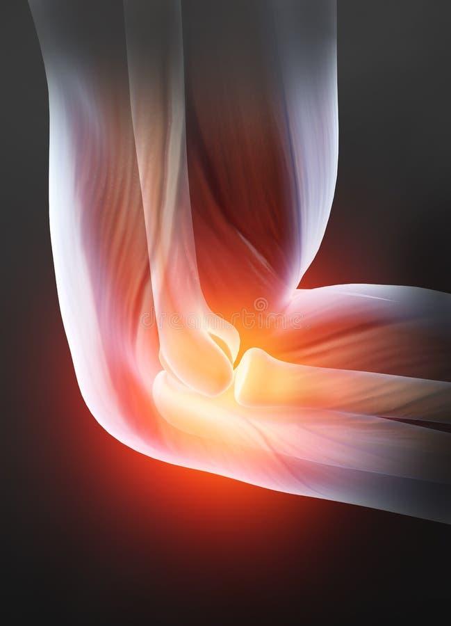 Smärtsam armbågeskarv, reumatoid artrit, medically illustration 3D stock illustrationer