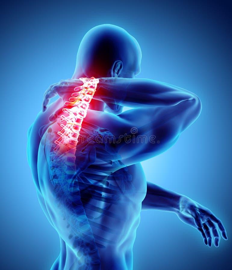 Smärtsam hals - skelett- röntgenstråle för cervikal rygg, illustration 3D vektor illustrationer