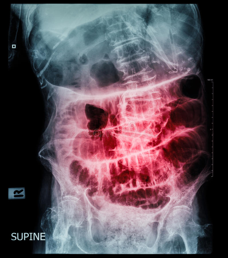 Small bowel obstruction ( film x-ray abdomen ( supine position ) : show small bowel and stomach dilate ) ( step ladder pattern ) stock photos