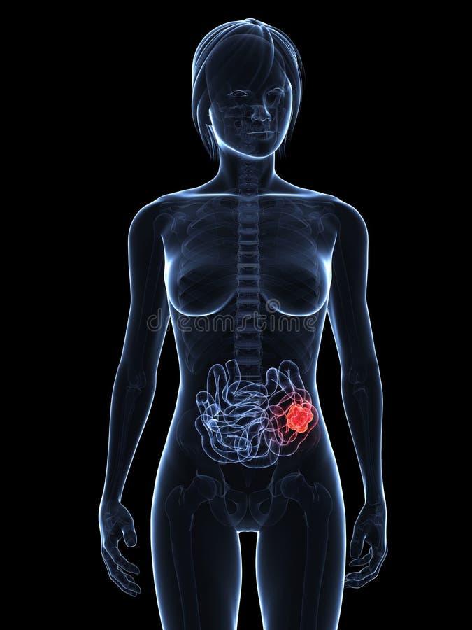 Small intestine cancer stock illustration. Illustration of colon ...