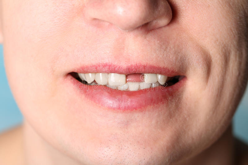 Smile without front tooth. Smile of man without one front tooth royalty free stock photography
