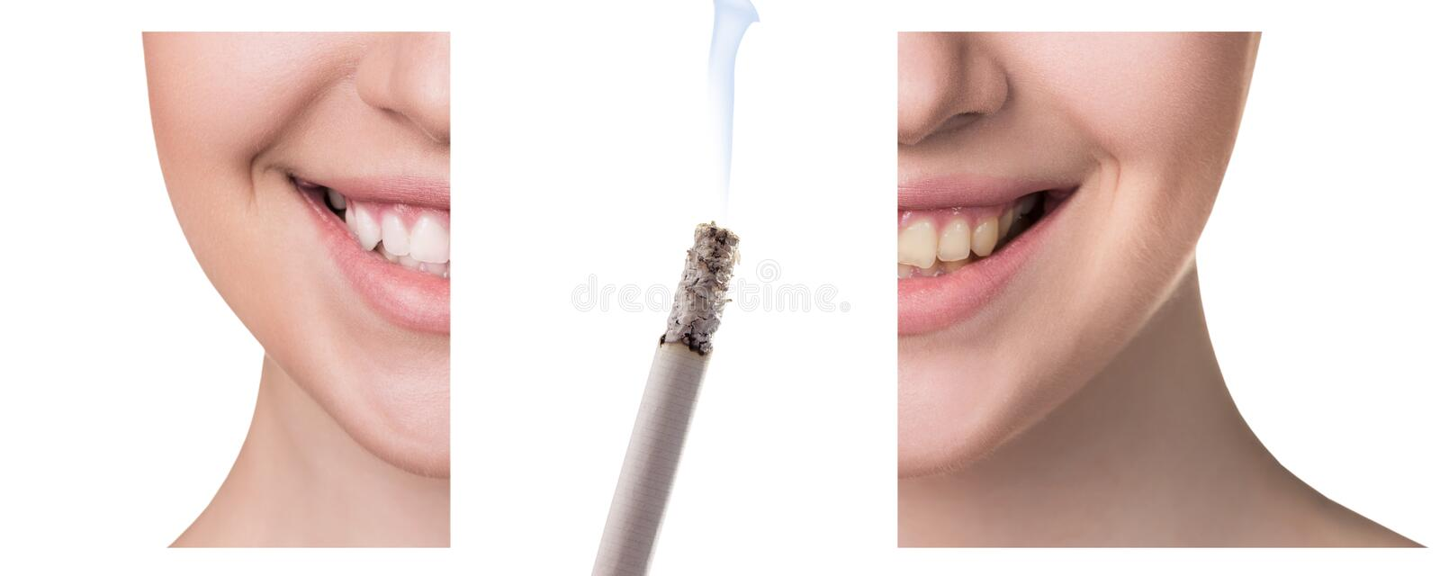 Smile before and after smoking. Concept of healthy smile stock photo