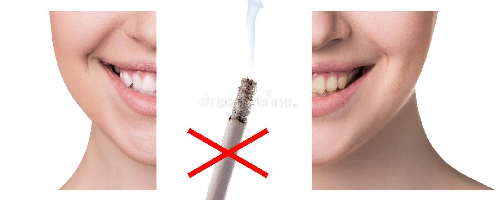 Smile before and after smoking. Concept of healthy smile stock photos