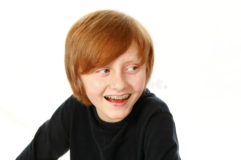 Smiling boy with braces looking to side royalty free stock photo