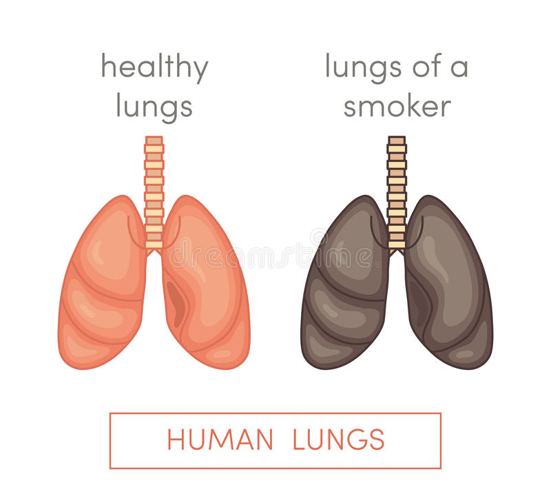 Smoker's lungs vector illustration