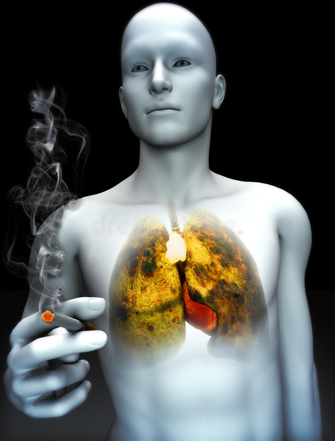 Smoking kills concept. Male smoking with view of rotting lungs from smoking abuse. Part of a health abuse series stock illustration