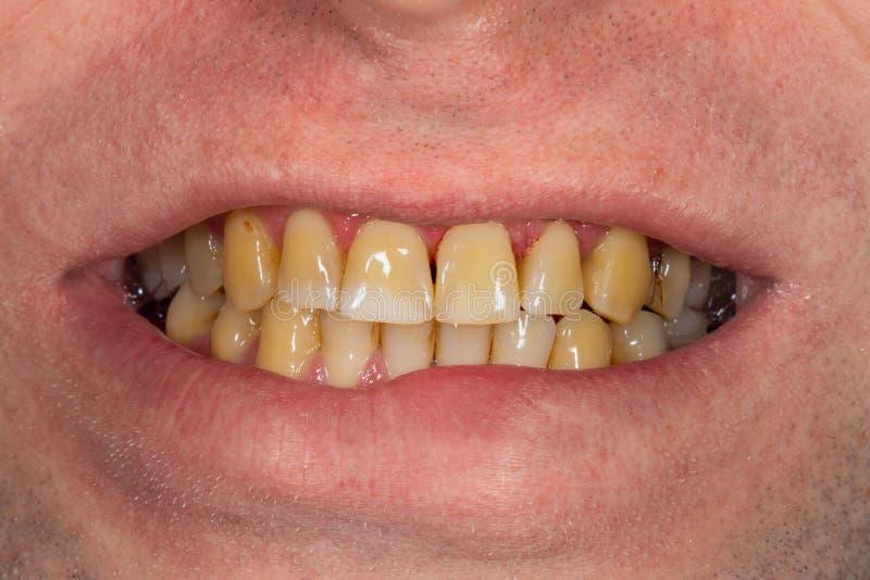 Smoking, plaque on teeth Brown resinous plaque on teeth close-up. Smoking harm concept. Smoking, plaque on teeth....human teeth after smoking. Brown resinous stock photo