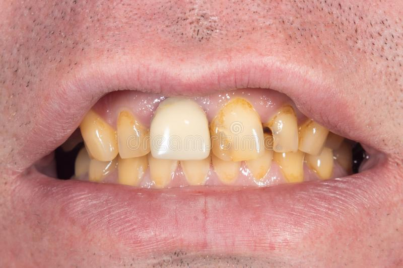 Smoking, plaque on teeth. Human teeth after smoking. Brown resinous plaque on teeth close-up. Smoking harm concept royalty free stock image