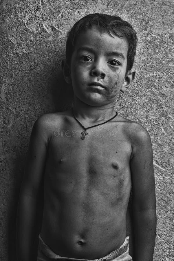 Smutsig pojke på en bakgrund av den gråa väggen med ett uttryck av förtvivlan på hans framsida arkivfoto