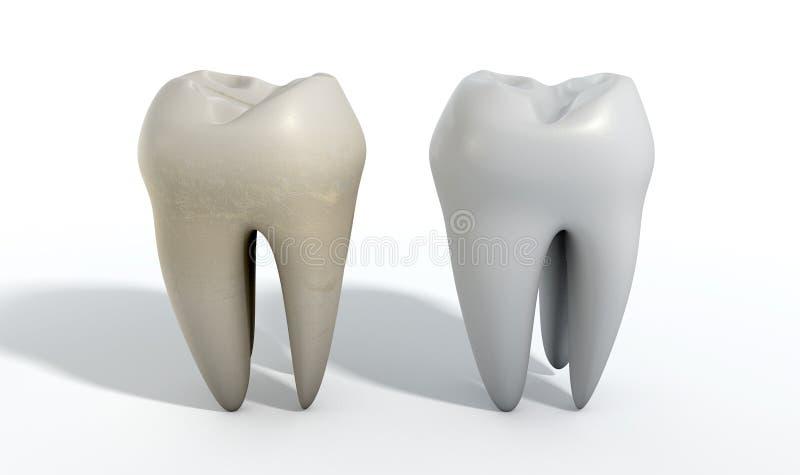 Smutsig ren tandjämförelse vektor illustrationer
