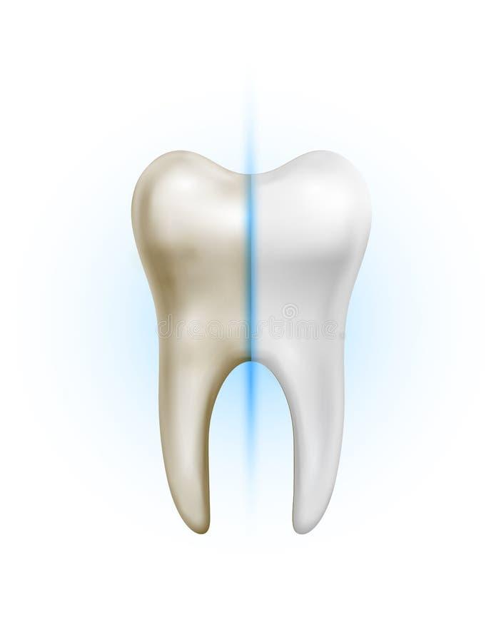 Smutsig tand för vektor och vit ren sund tandjämförelse på vit bakgrund stock illustrationer