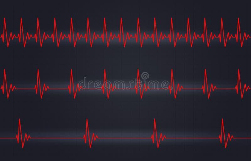 Snabb normal långsam hjärtslagillustration royaltyfri illustrationer