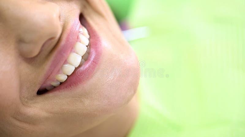 Sneeuwwitte tanden van tevreden tandheelkundeklant, het bleken procedure, kliniek stock fotografie