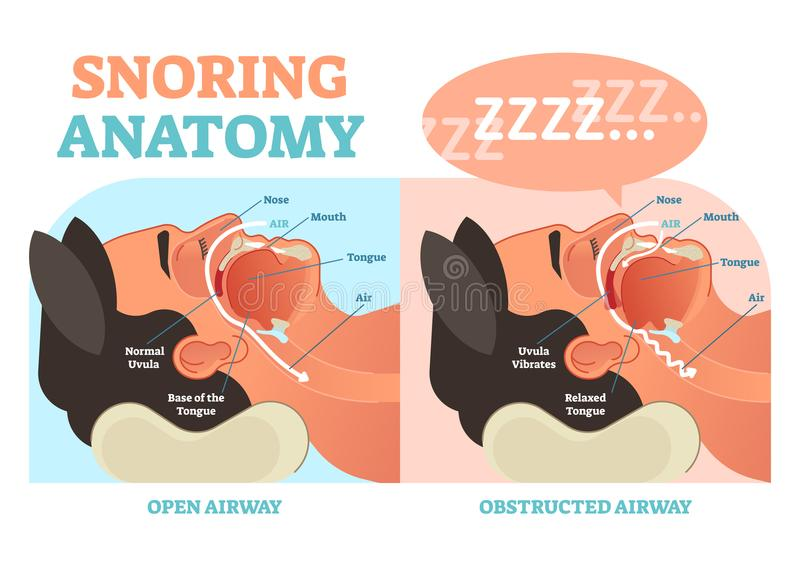 Snoring anatomy medical vector diagram with air passage. stock illustration