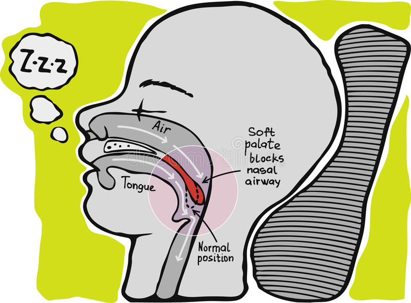 Download Snoring. Informational Graphics, Stock Illustration - Image: 27809456