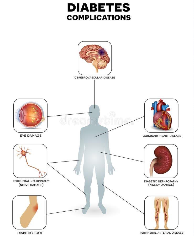 Sockersjukakomplikationer royaltyfri illustrationer