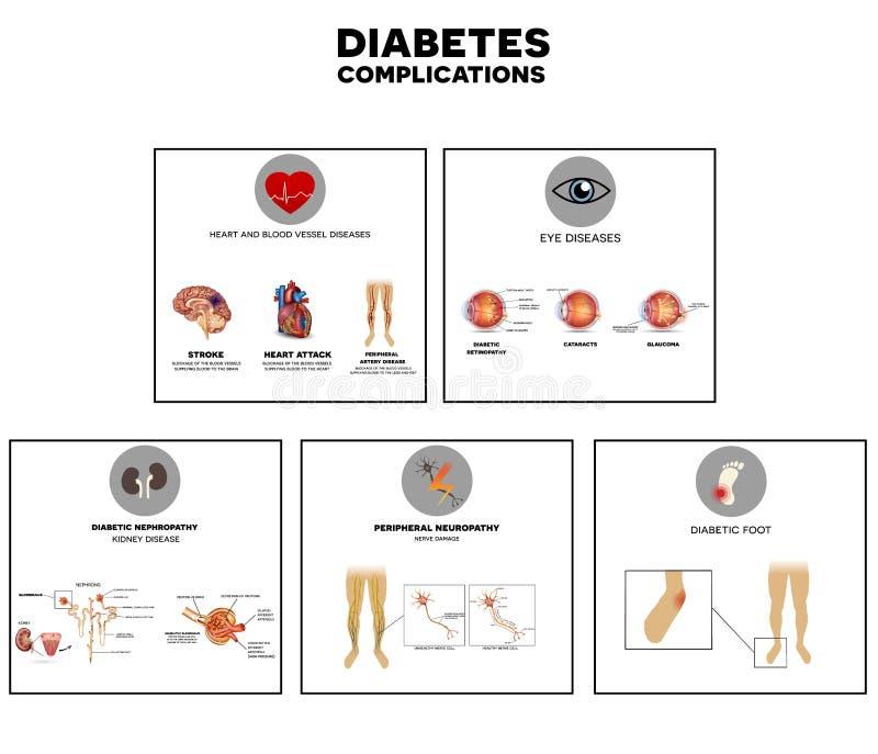 Sockersjukakomplikationer stock illustrationer