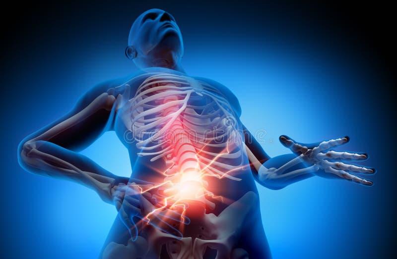 Sofferenza dell'uomo con il dolore forte in spina dorsale illustrazione di stock