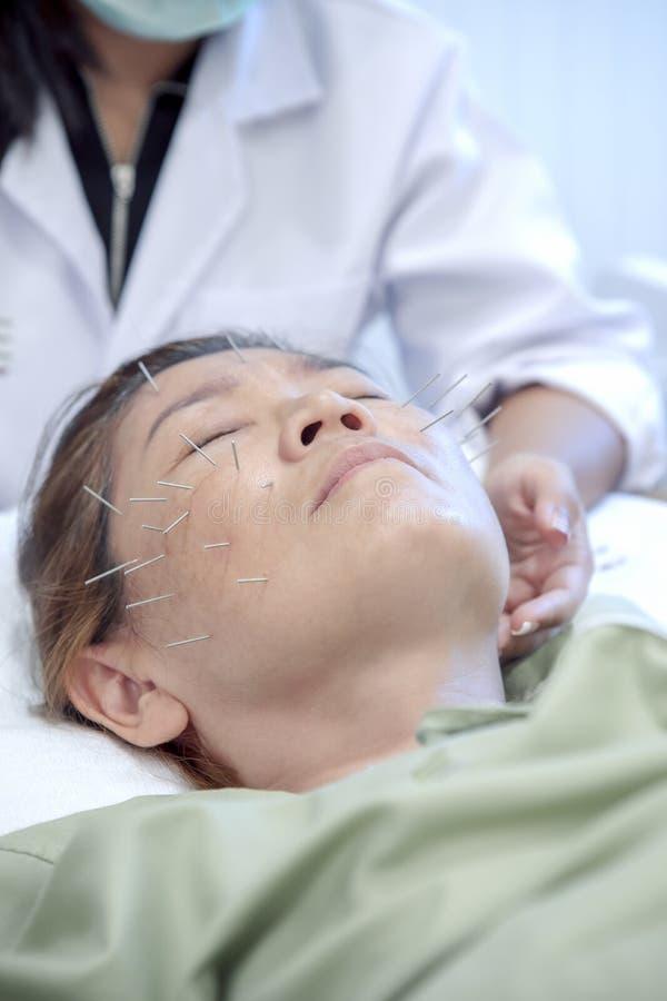 Sofrimento asiático da mulher do tratamento da cara da beleza da acupuntura fotografia de stock