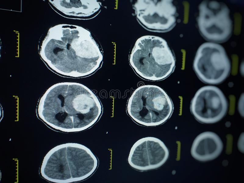 Soft and blurry image MRI brain showing in the LCD moniter ,Medical concept. royalty free stock photography