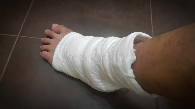 Soft splint to heal leg injury. From fractures and tendon inflammation royalty free stock photo