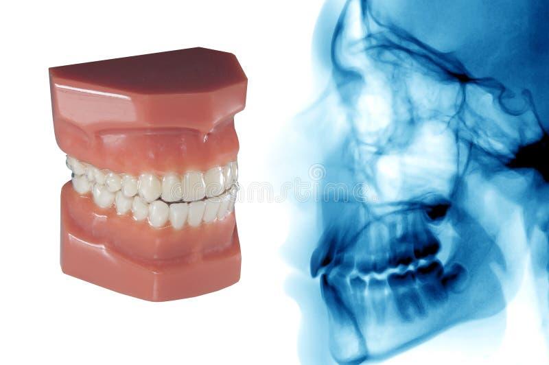 Soins dentaires : dispositif d'alignement orthodontique invisible et rayon X céphalométrique photos libres de droits