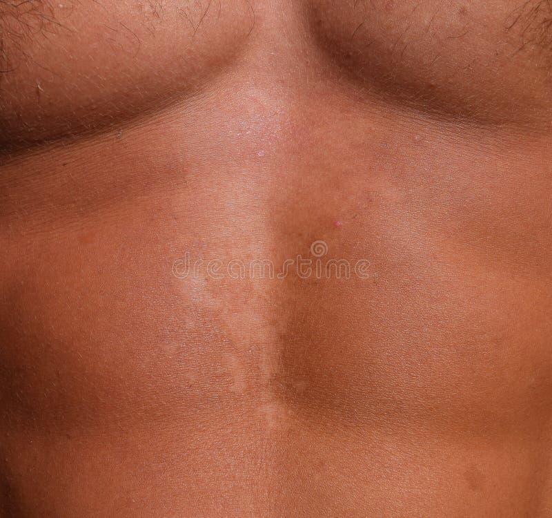 Solbränna på huden av magen Exfoliation hud skalar av Farlig solbränna arkivfoto
