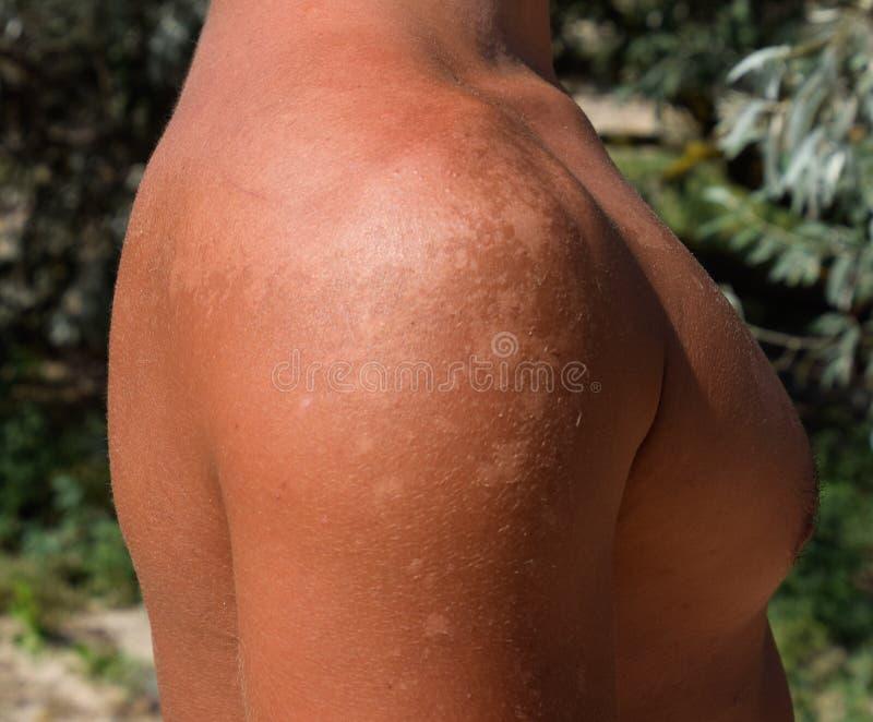 Solbränna på huden av skuldrorna Exfoliation hud skalar av Farlig solbränna arkivfoto