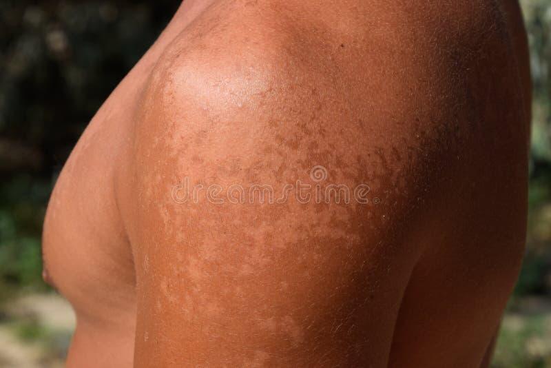 Solbränna på huden av skuldrorna Exfoliation hud skalar av Farlig solbränna royaltyfri foto