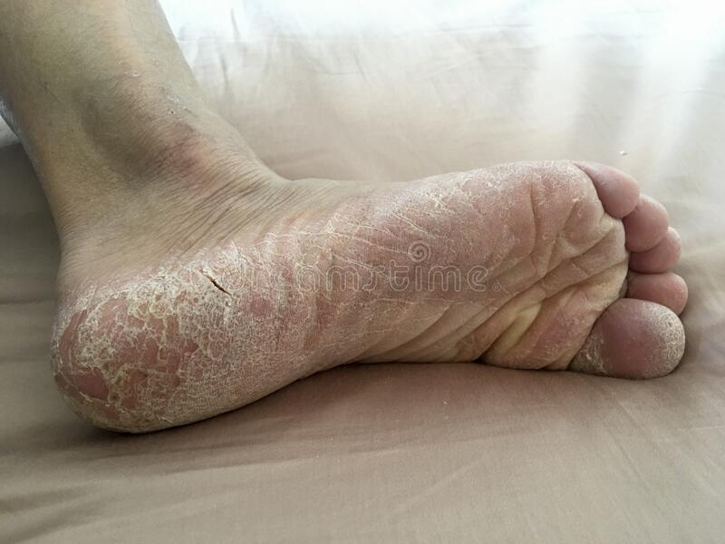 Big feet tickled