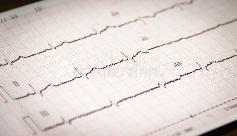 Som skrivs ut av kardiogrammet arkivfoto