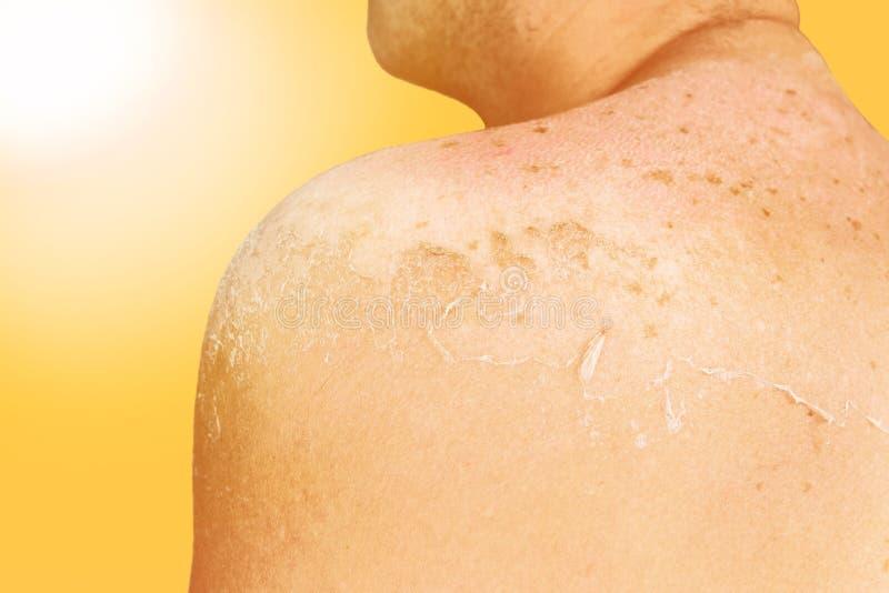 Sonniges Sonnenbrandkonzept Zurück von einem Mann mit der Haut gebrannt im hellen Sonnenschein stockfotografie