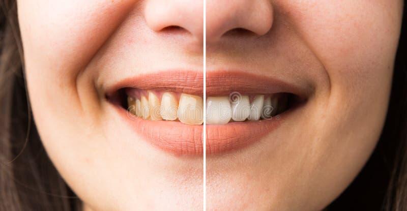 Sonrisa de la mujer antes y después del blanqueo imágenes de archivo libres de regalías