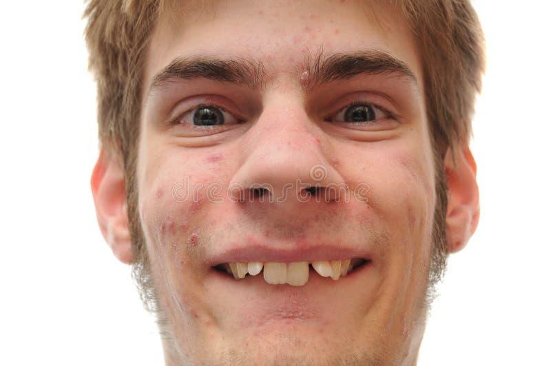 Sonrisa del hombre joven quién necesita paréntesis imágenes de archivo libres de regalías