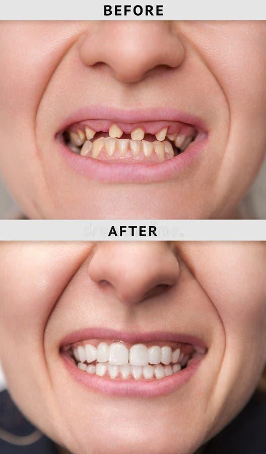 sonrisa femenina después y antes de dental foto de archivo libre de regalías