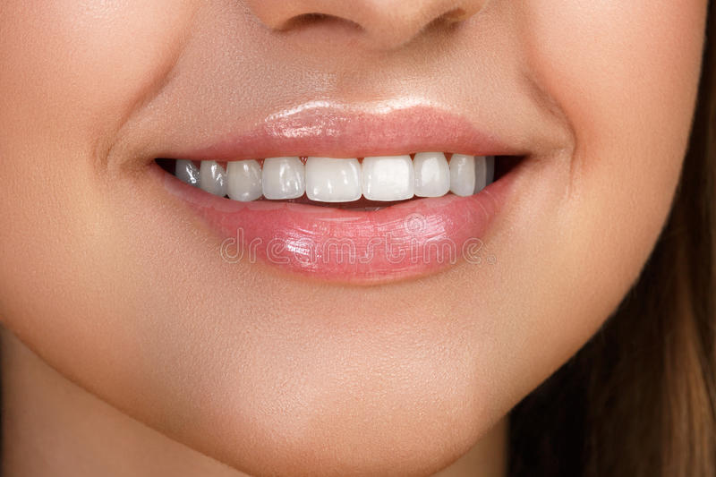 Sonrisa hermosa con blanquear los dientes foto de archivo libre de regalías