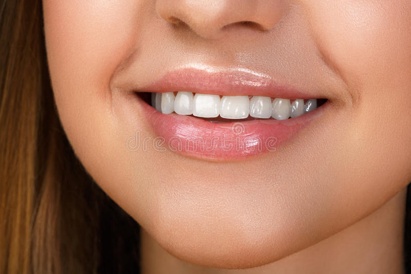 Sonrisa hermosa con blanquear los dientes fotografía de archivo libre de regalías