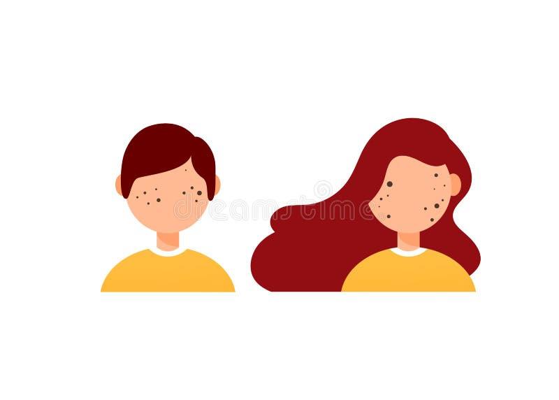 Soorten de illustratievector van het acnediagram op witte achtergrond, Schoonheidsconcept stock illustratie